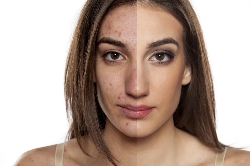 Влияние печени на кожу